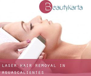 Laser Hair removal in Aguascalientes