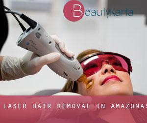 Laser Hair removal in Amazonas