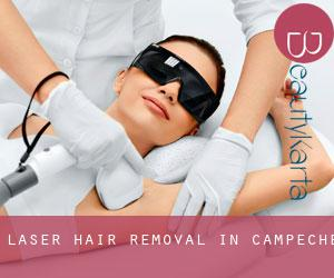 Laser Hair removal in Campeche