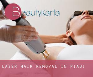 Laser Hair removal in Piauí