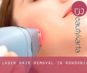 Laser Hair removal in Rondônia